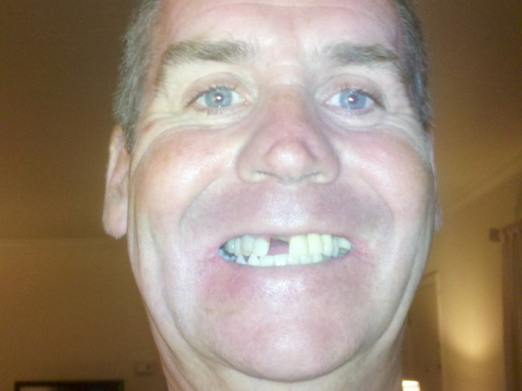 Garry McGivern missing one of his front teeth