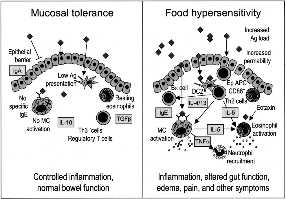 Gastrointestinal food allergy: New insights into