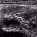 Dilated jejunal loops filled with fluid in a patient with celiac sprue