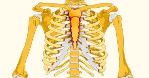 דלקת סחוס הצלע אבחון וטיפול