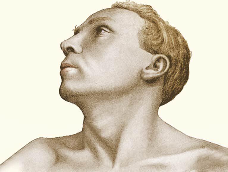 טורטיקוליס חריף אבחון וטיפול