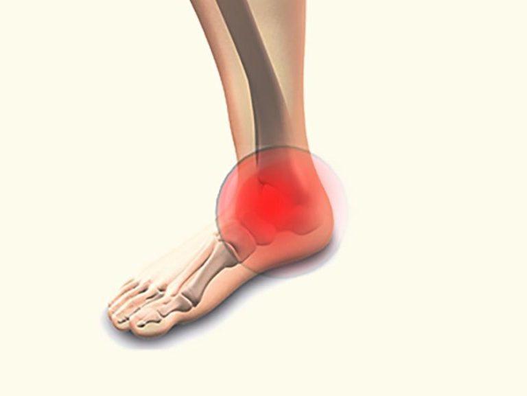 כאבים בקרסול טיפול ושיקום