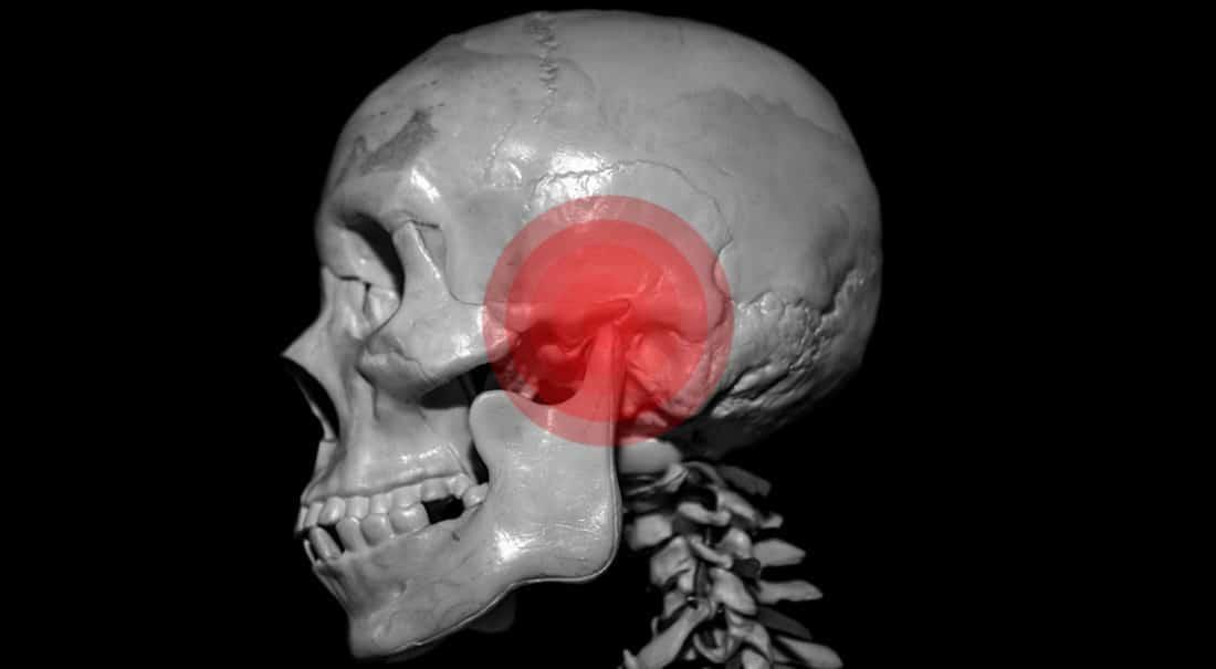הרצאה על תסמונת מפרק הלסת