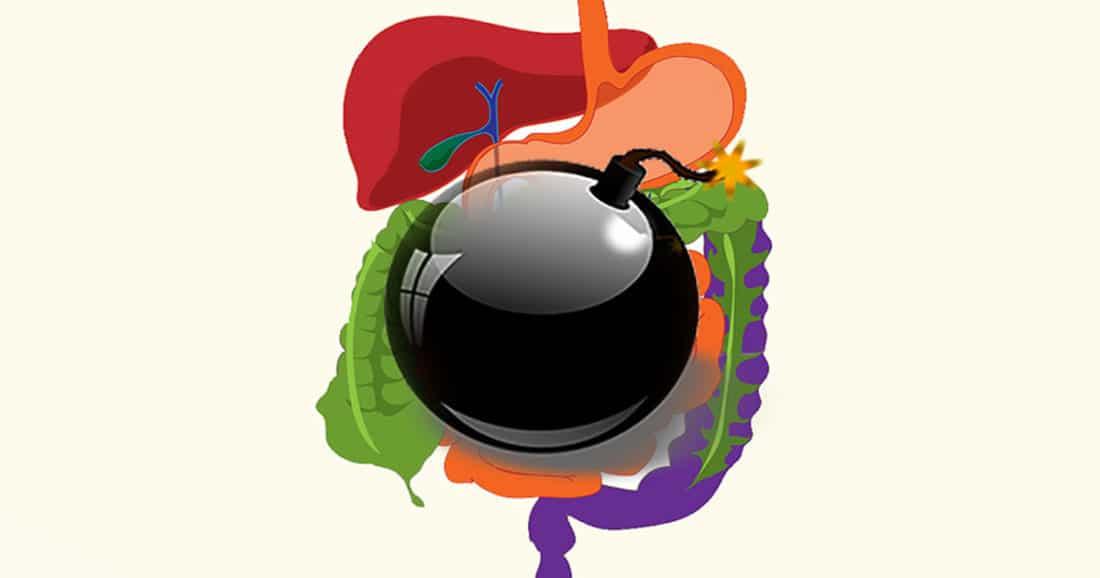 נוגדי דלקת מזיקים לקיבה