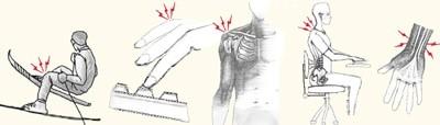 פציעות ספורט טיפול עצמי ומקצועי