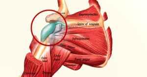 בורסיטיס בכתף אבחון וטיפול