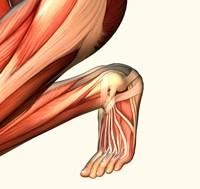 תסמונת הרצועה האיליו-טיביאלית