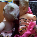 JUSTICE FOR JAMIMAH: How ritualist cut my Albino daughter's Arm - Zambian Mother
