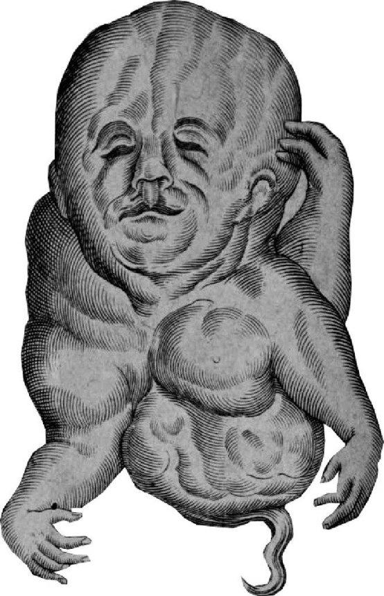 Foetus monstrosus z broszury Oelhafa, Gdańsk 1613