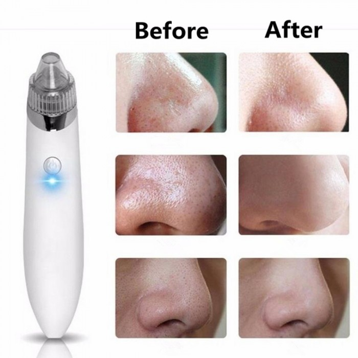 Rt 8080 Rechargeable Electric Blackhead Removal Instrument Dead Skin Acne Remove Pore Cleaner Home Beauty Device