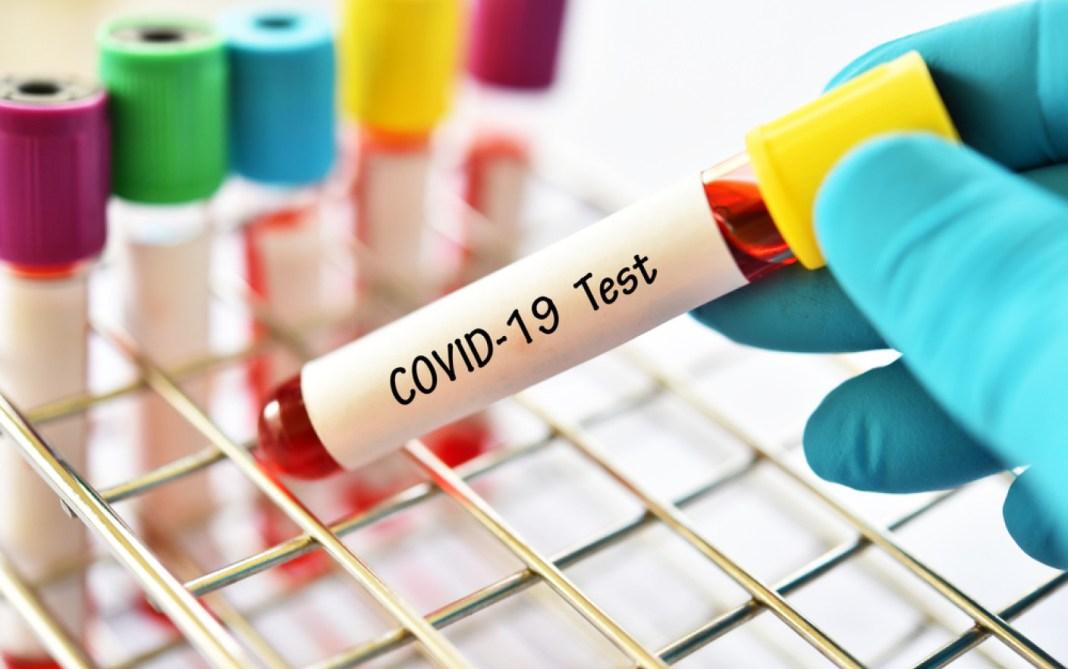 Din 90 probe analizate aleatoriu de specialiștii MedLife, 45 conțineau tulpina de coronavirus originară din Marea Britanie