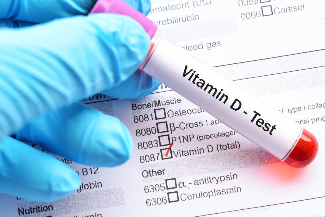 Un studiu arată că 4 din 5 pacienţi COVID-19 au deficienţă de vitamina D