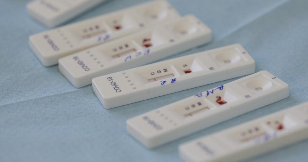 Au fost efectuate 25.484 de teste RT-PCR (14.360 în baza definiției de caz și a protocolului medical și 11.124 la cerere) și 40.776 de teste rapide antigenice