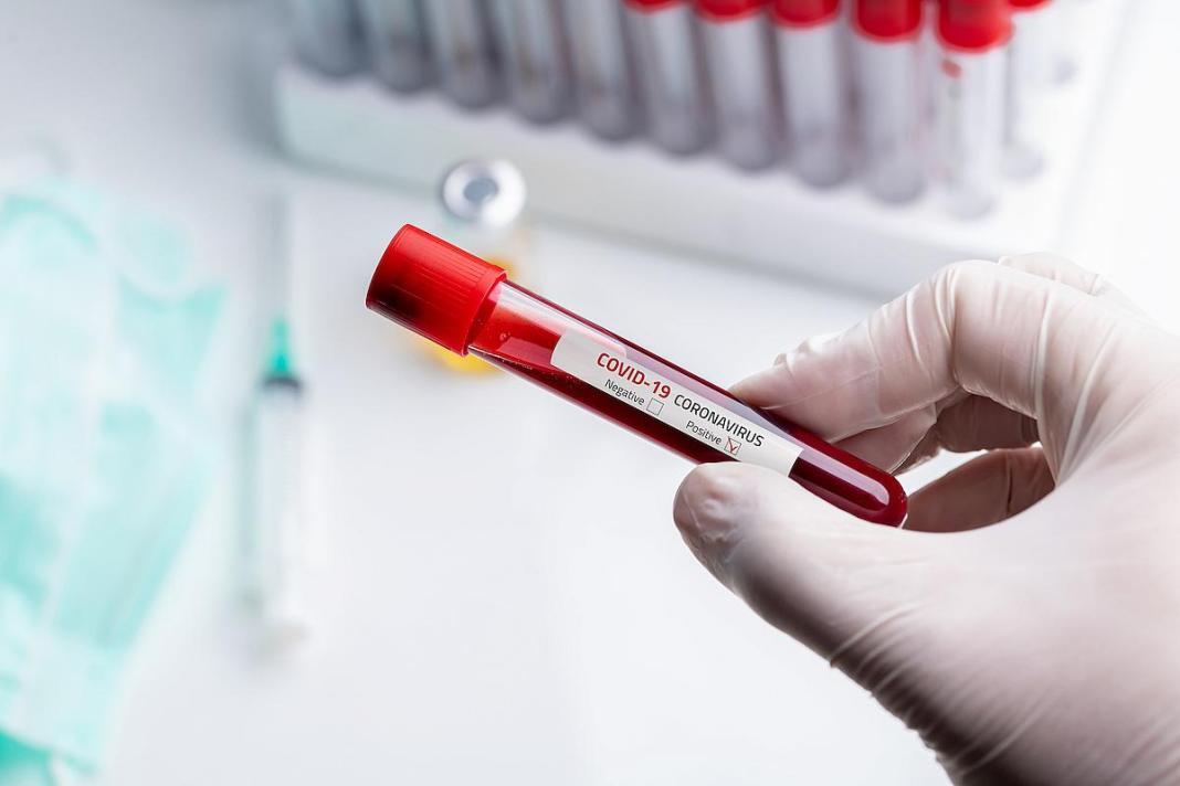 Au fost înregistrate 12.032 de cazuri noi de persoane infectate cu COVID-19, dintre care 187 sunt ale unor pacienți reinfectați