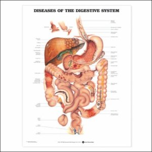 Colonic Diseases of the Bowels