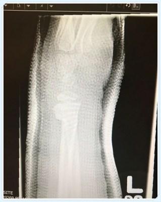 POD: Broken, but healing