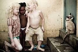 Albinos: Irmãos sem direito a brincadeiras à luz do dia