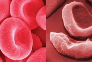 O transplante de medula óssea para anemia falciforme