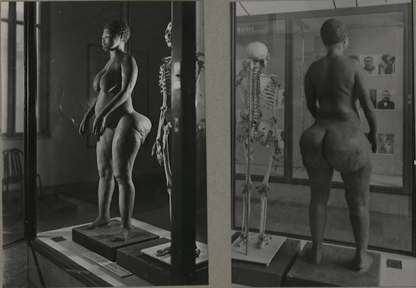 Sarah Baartman morreu em 1815, mas seu esqueleto, bem como uma reconstrução de seu corpo, ficaram à exposição do público no Museu do Homem, na França, até 1975. Apenas em 2002, seus restos mortais forma devolvidos à África do Sul.