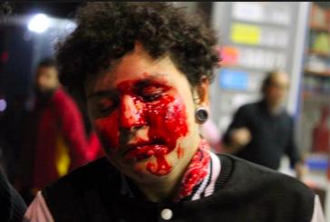"""Leandro Karnal: professor que festejou ataque a estudante é """"co-autor da violência"""""""