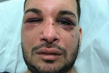 Ativista gay é sequestrado, agredido e estuprado por dois dias na França