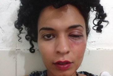 Estudante transexual de pré-vestibular da UFPE é vítima de agressão e denuncia transfobia