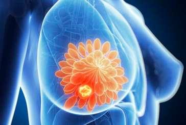 Brasileiros descobrem 6 novas mutações para câncer de mama e ovário