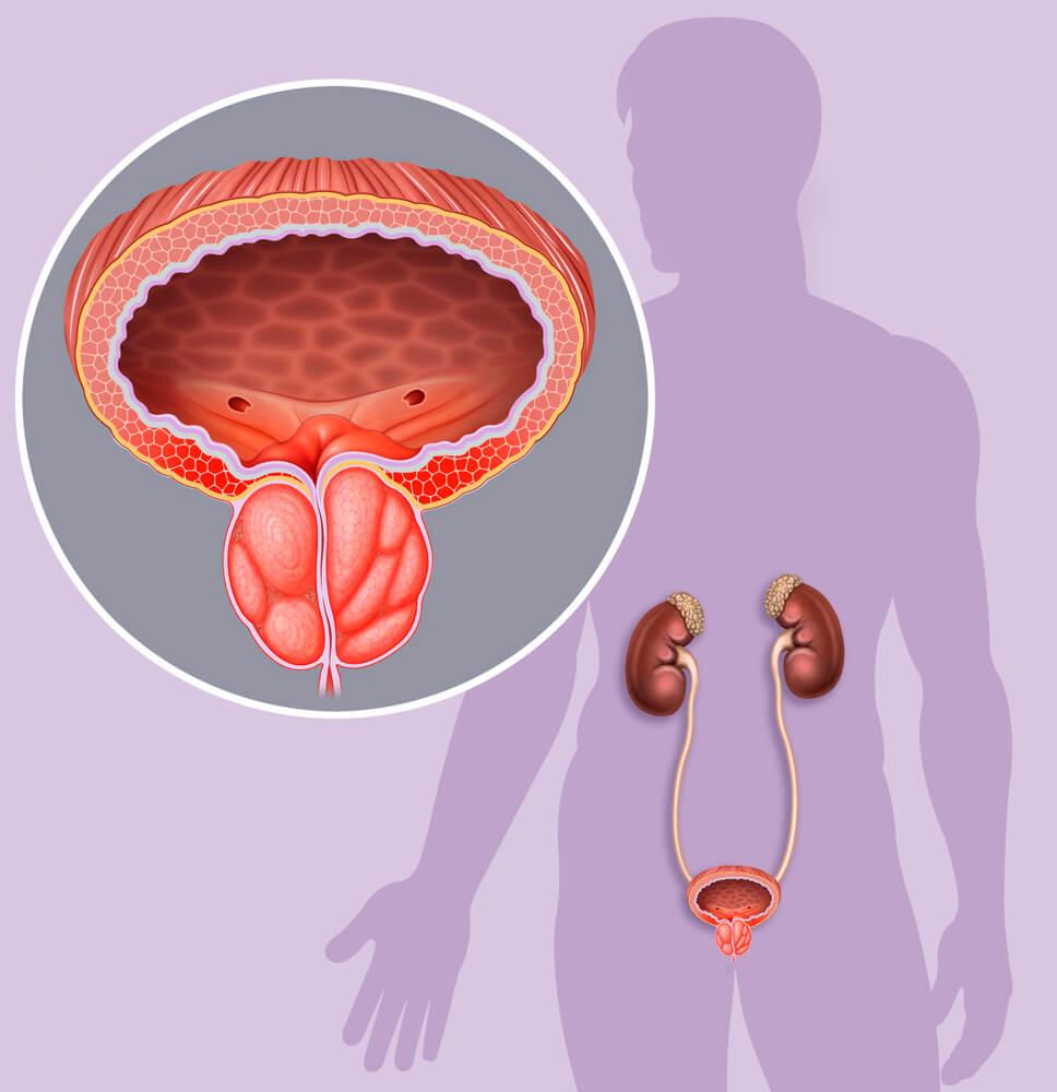 trattamento farmacologico per ipertrofia prostatica benigna