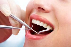Rongga pada Gigi- Global Estetik Dental Care
