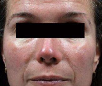 excel v dermatologist jupiter fl