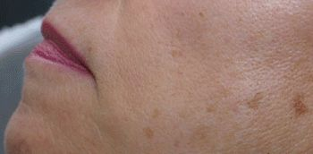 limelight dermatologist jupiter fl