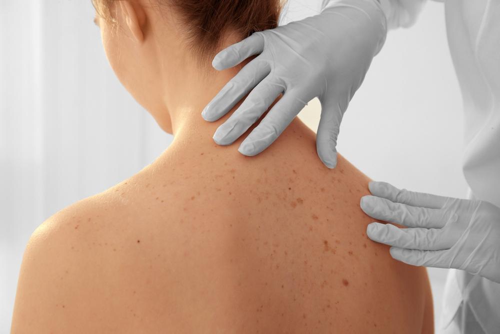 skin screening dermatologist jupiter fl
