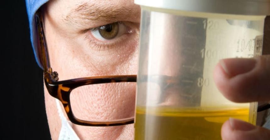test urine untuk memastikan penyebab anyang-anyangan