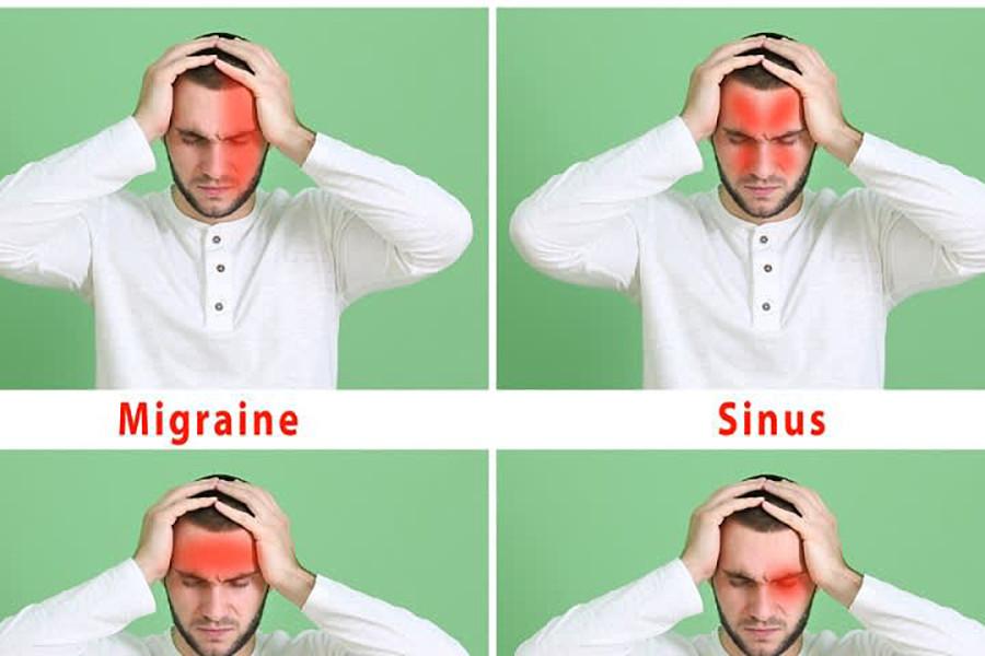 MacamMacam Sakit Kepala yang Bisa Menimpa Kamu dan Cara