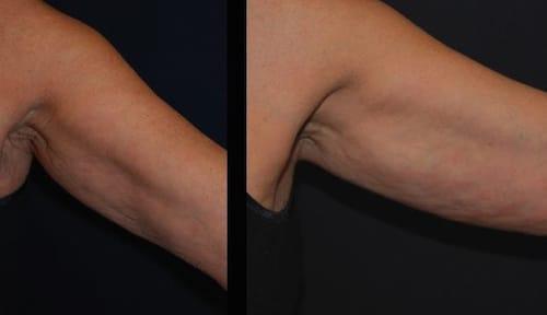 MACROLANE-int-braccio