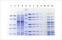ExpressPlus PAGE Gels - precast gel, polyacrylamide gel ...