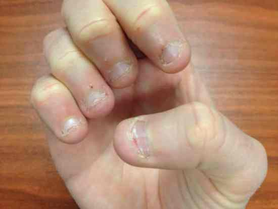 Its important to take care of your nails