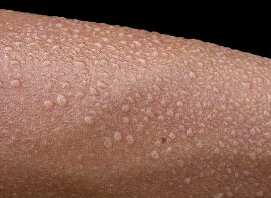 A close-up of eccrine perspiration on a forearm, presumably from heat or activity.