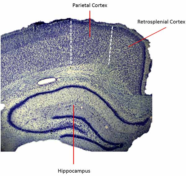 The retrosplenial cortex sits in the brain between the parietal and the hippocampus.