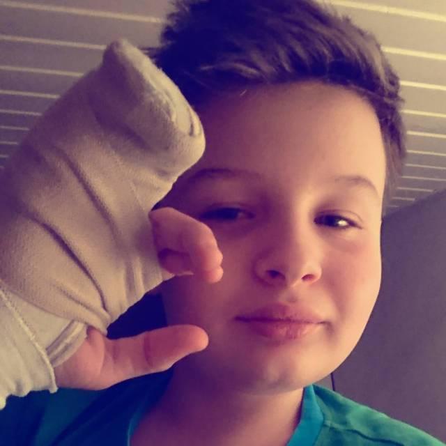 Finger gebrochen
