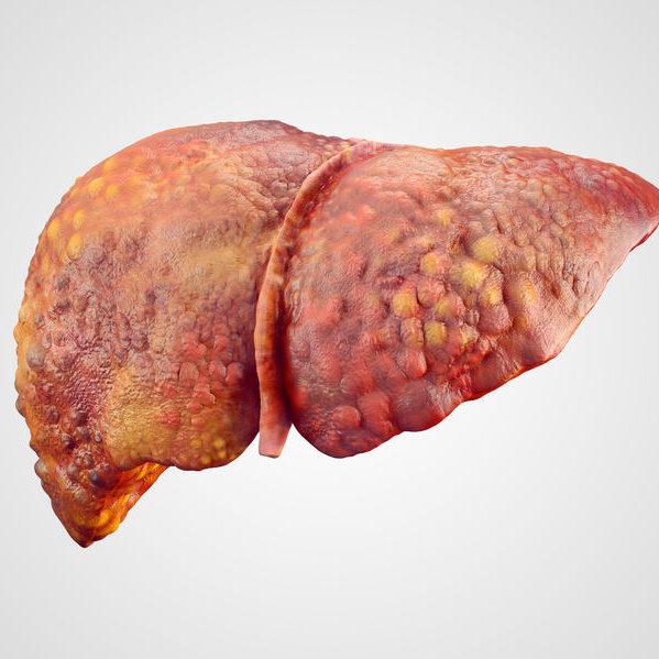 Cirrhosis of a fatty human liver.