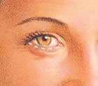 eyelid_lift_sidebar4