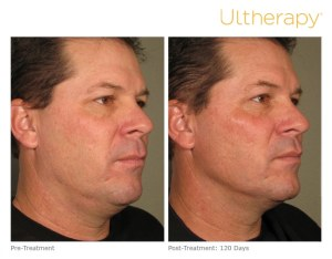 Ultherapy in Georgetown