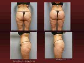 Brazilian butt lift at Georgetown Plastic Surgery