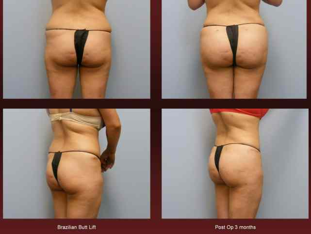 Brazilian Butt Lift at georgetown plastic surgery
