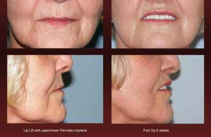 Lip enhancement at Georgetown Plastic Surgery