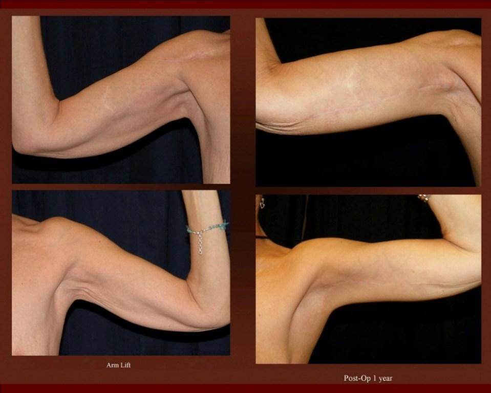 arm1 (1)