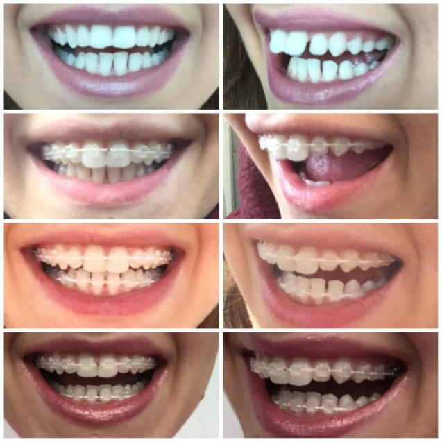6 Months Smile Braces Review