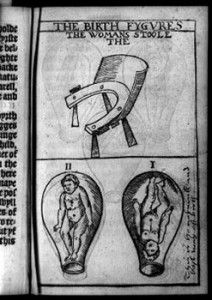 "Clockwise from top: Woman's stool (birthing chair); fetus in uterus, head down, marked ""This is the naturall [sic] and best way of birth""; fetus in uterus, feet down. Courtesy of Thomas Raynalde/Tradition of Science/Leonard C. Bruno/Library of Congress"
