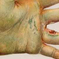 Arsenic in the 1800s: A Dangerous Poison